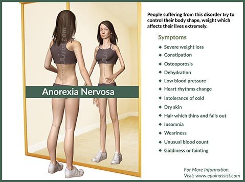 anorexia44
