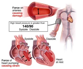 diastolic blood pressure2